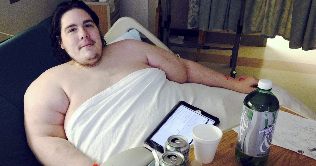 gsgsgg 2.jpg?resize=1200,630 - This 800-Pound Man Looks Like A Completely Different Person After Shedding Half His Body Weight