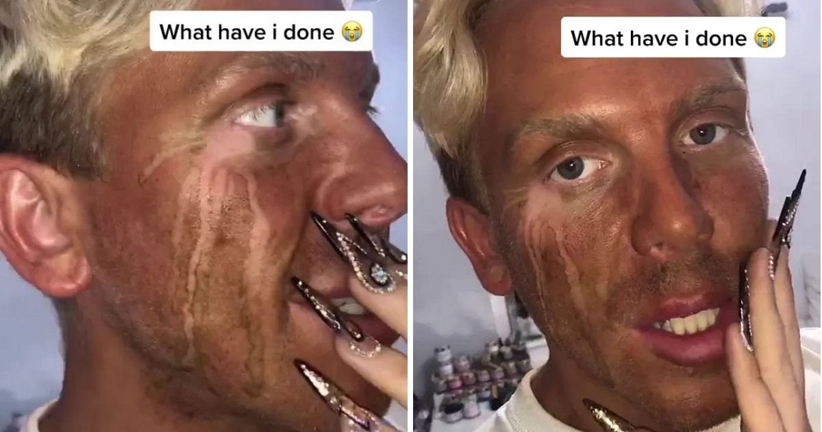 josh5.jpg?resize=1200,630 - Man Suffers Epic Tan Fail After Breaking Down In Tears At Emotional Film