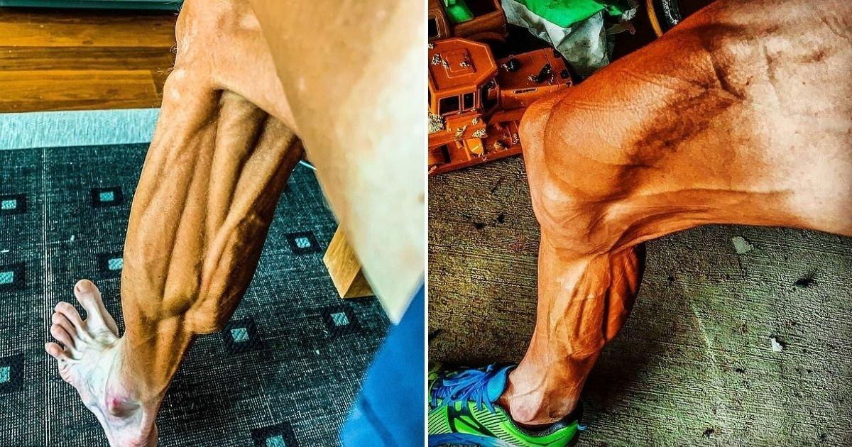 smalljoys 5.jpg?resize=1200,630 - Former World-Champ Cyclist  Revealed Shocking Pictures Of His Legs After His Comeback Race