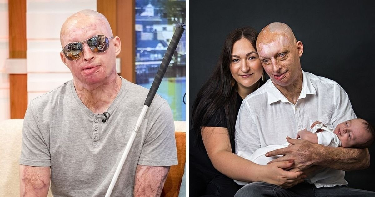 untitled design 10 3.jpg?resize=1200,630 - Acid Attack Survivor Is Suffering From Nightmares After Jealous Ex-Girlfriend Poured Acid All Over His Body