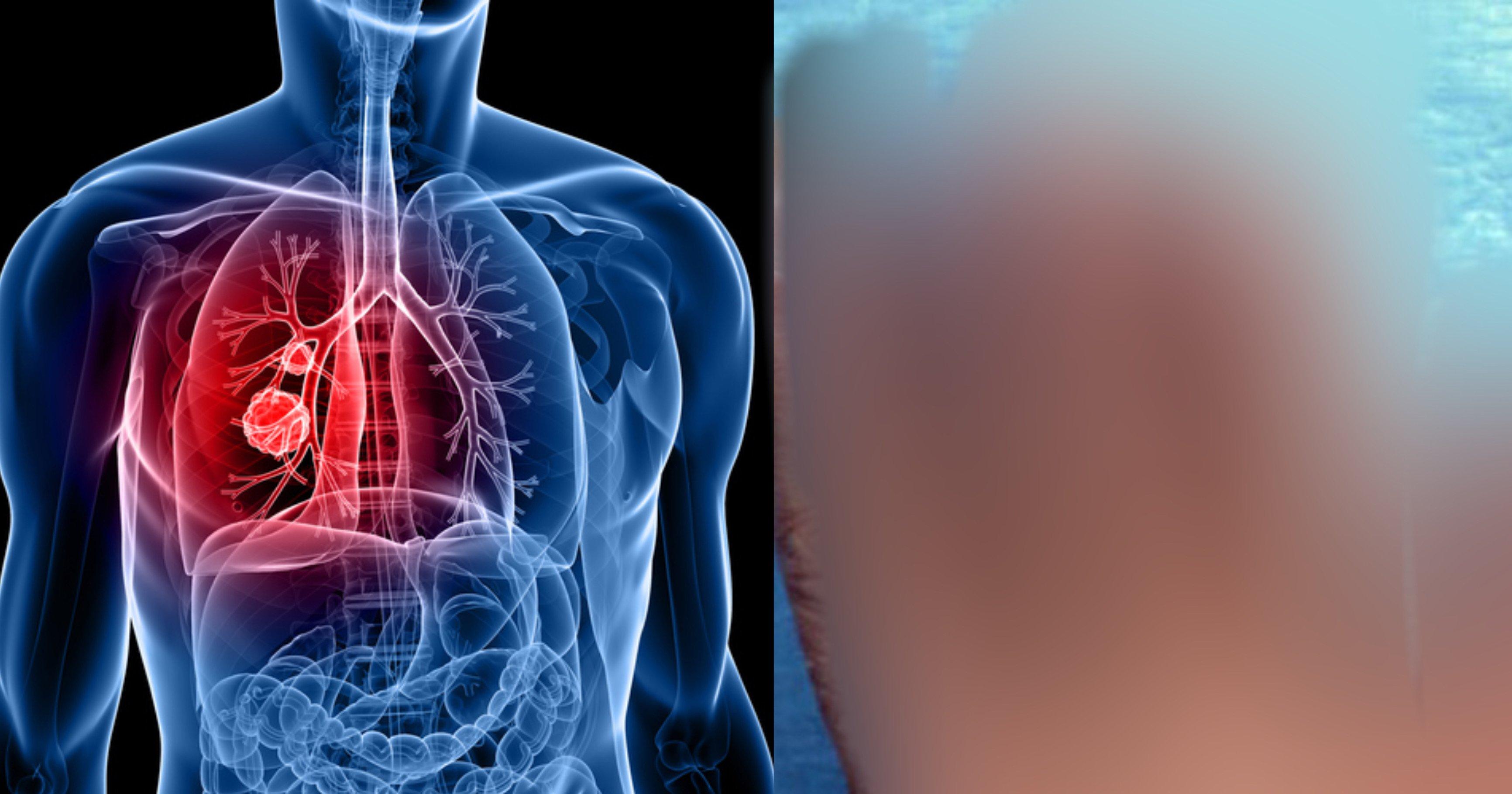 f62d1eb2 6a98 4dab b418 363ad979f6ce.jpeg?resize=1200,630 - 肺がん自己診断ができる?!コレに該当したあなたは肺がんの初期症状かもしれない…