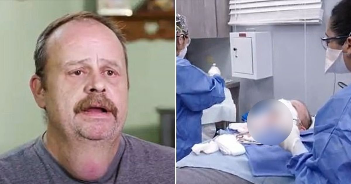 lump6.jpg?resize=412,232 - Man With Huge 20-Year-Old 'Neck Testicle' Finally Has It Removed From His Throat