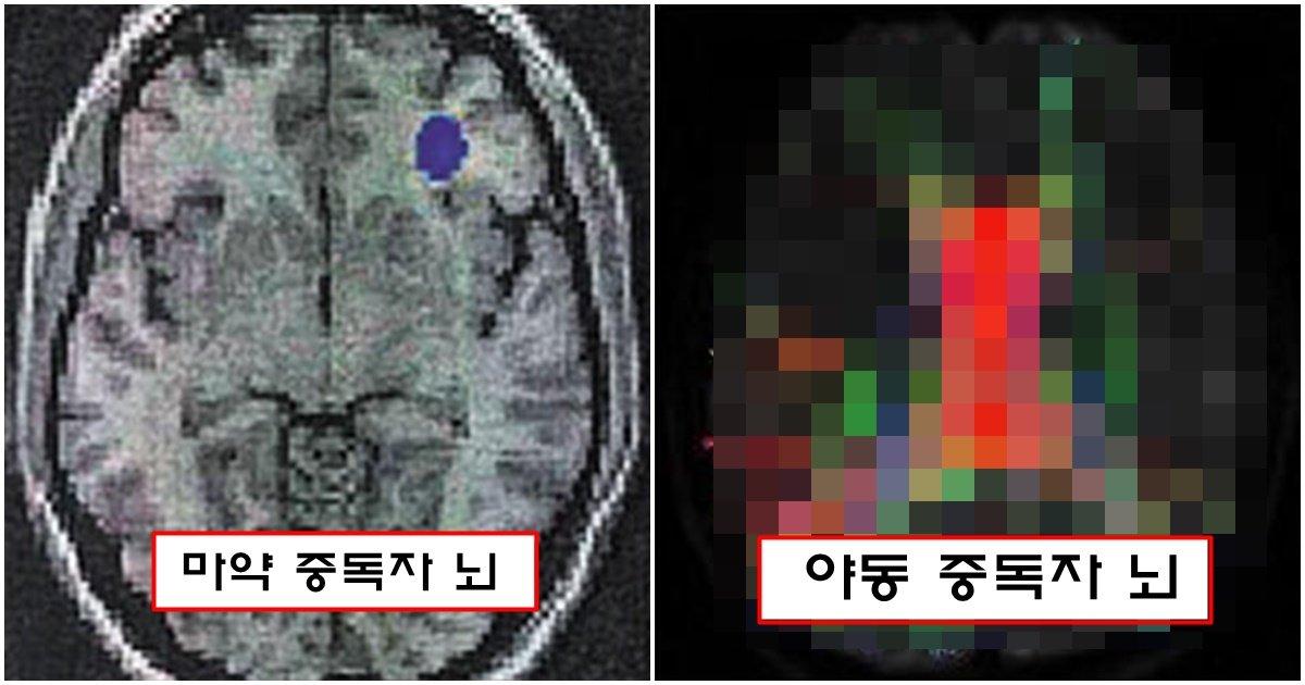 page 315.jpg?resize=1200,630 - oㅑ동을 과하게 많이 본 사람에게 생겨버린 뇌 모양 변화