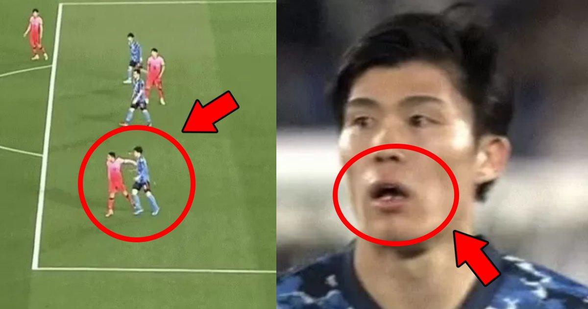 tomiyasu.png?resize=1200,630 - 冨安健洋が相手選手に拳をぶつけられ歯が折れた?顔面直撃で韓国国民も謝罪する事態に…