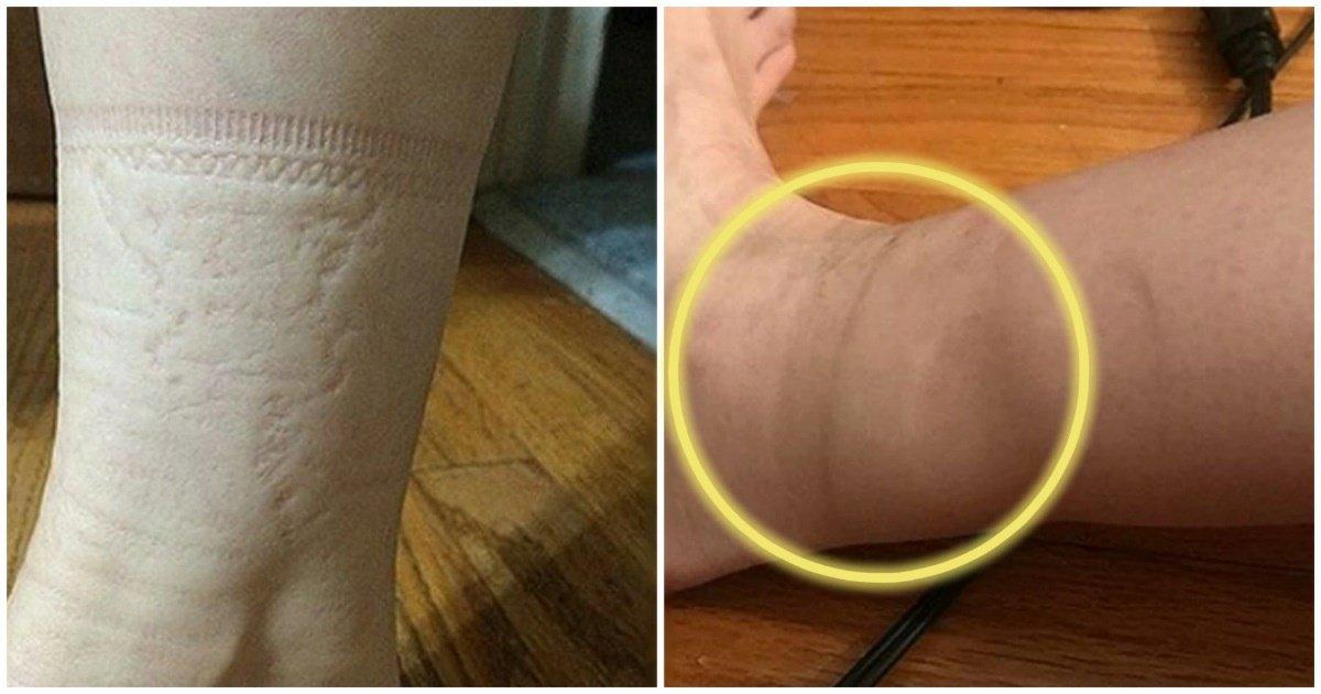 1 19.jpg?resize=1200,630 - 帰宅後、足首に残る『靴下の跡』もしかしたら命に関わる病気かも…!