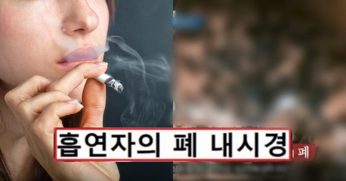 """3540279f da5f 4a0d 8388 e78de1085754 1.jpeg?resize=1200,630 - """"응, 난 안죽어"""" 했던 흡연자들의 폐를 내시경으로 봤을 때 벌어진 충격적인 일"""
