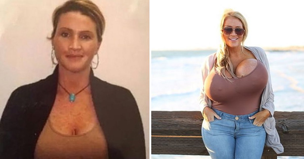 agggg.jpg?resize=412,275 - Curvy Model Left With 'Spongebum' & 'Wonky B*obs' As Plastic Surgery Goes Horribly Wrong