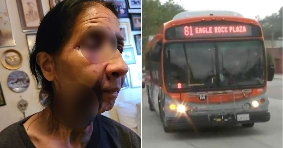 becky5.jpg?resize=1200,630 - 70-Year-Old Woman Battered On Bus After A 23-Year-Old Passenger Thought She Was An Asian-American, Victim's Son Said
