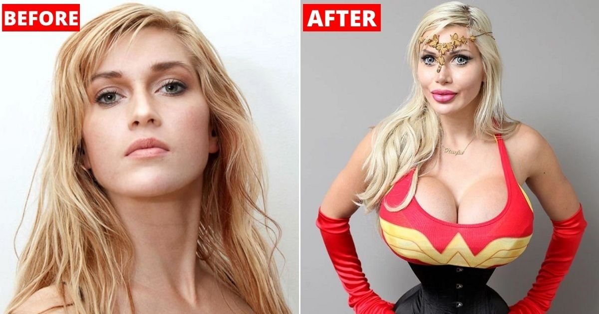 before.jpg?resize=1200,630 - Woman Removes SIX Ribs And Insists This Is The 'Ideal' Female Body
