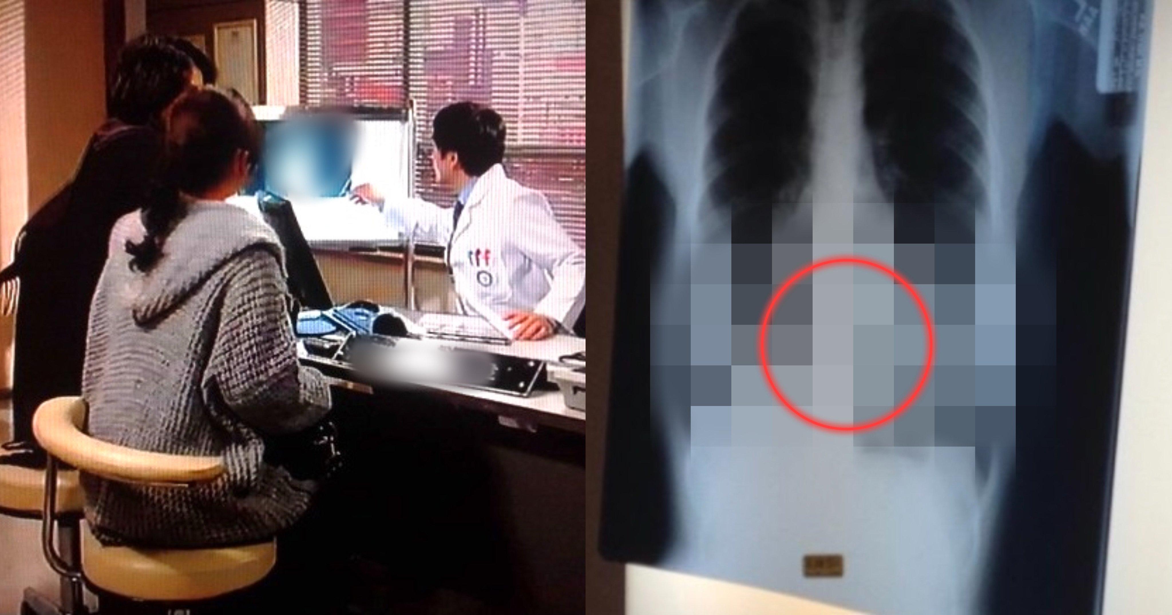 """c391526a 7402 4d35 b90a cff1de19209d.jpeg?resize=1200,630 - 「お母さんと病院に行ってレントゲンを撮ったんだけど…」""""そこ""""にあった…バレてしまった、どうしよう…?"""