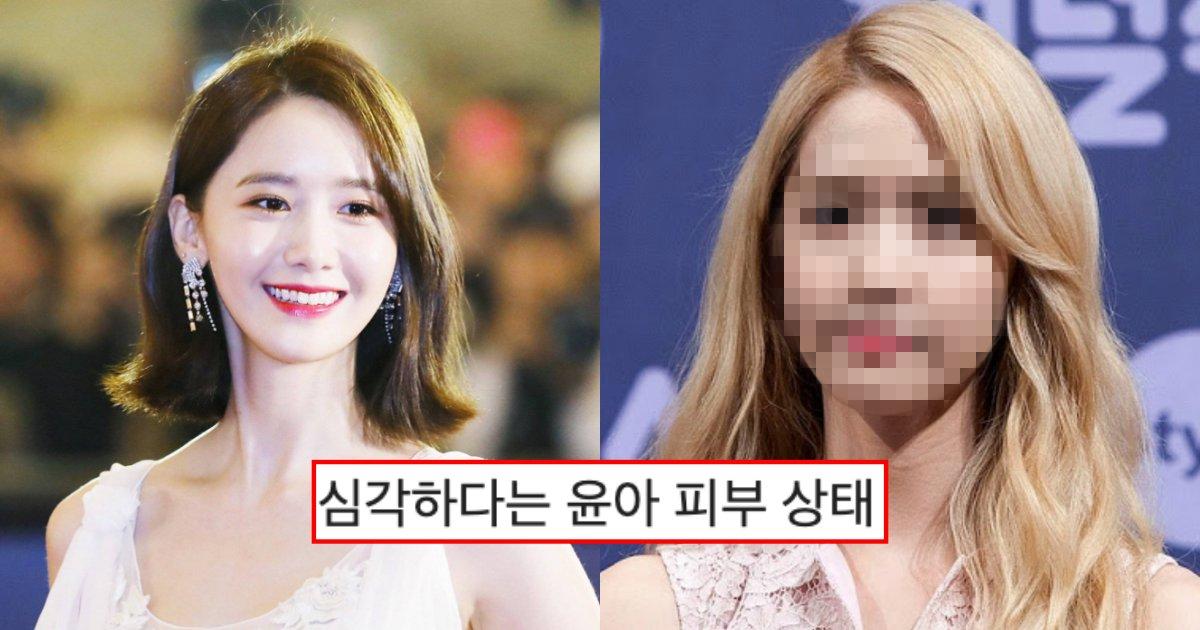 "collage 140.png?resize=1200,630 - ""헐.. 피부 상태 왜이래…?""… 커뮤니티에서 완전 난리 난 소녀시대 윤아 얼굴 피부 상태"