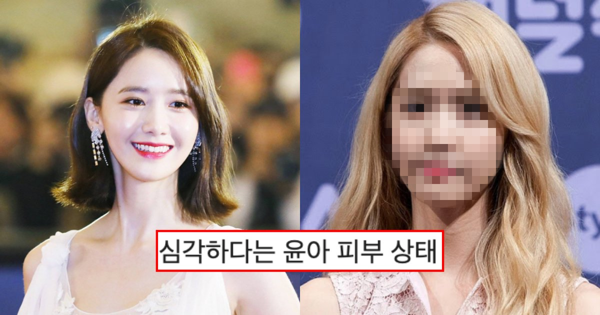 "collage 140.png?resize=412,275 - ""헐.. 피부 상태 왜이래…?""… 커뮤니티에서 완전 난리 난 소녀시대 윤아 얼굴 피부 상태"