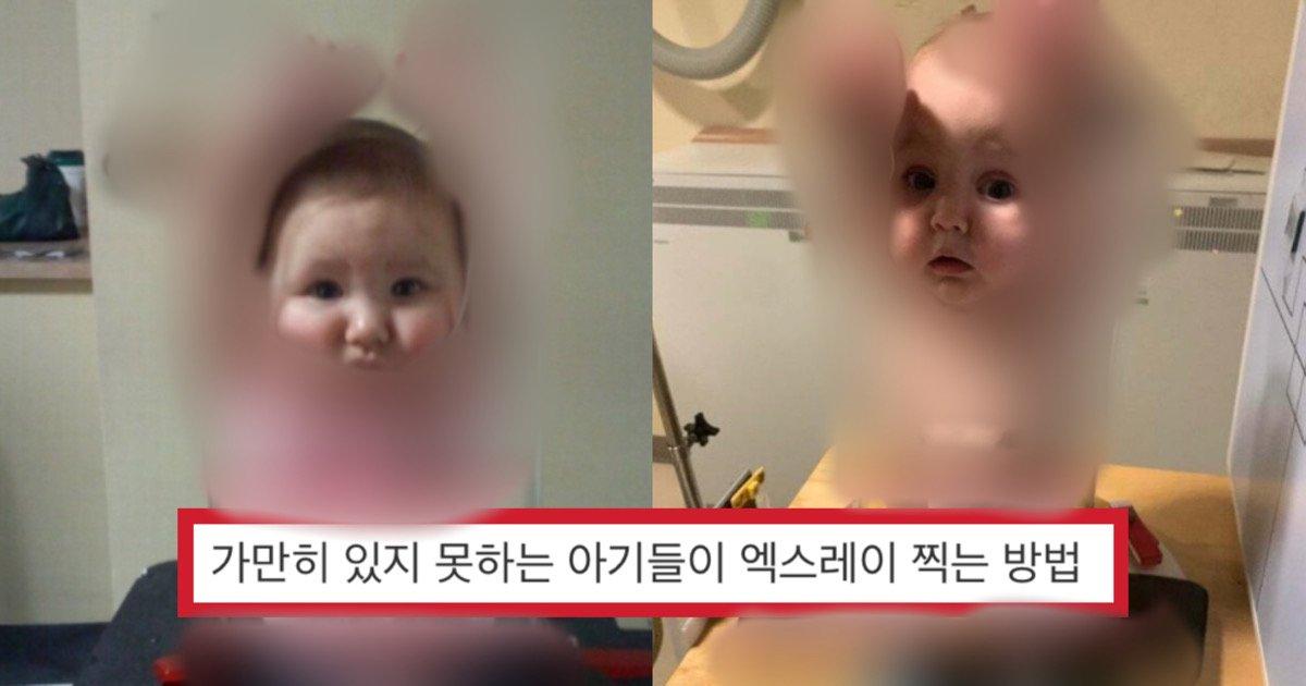 d3740272 62b8 4f65 acf4 108fe4f67401.jpeg?resize=1200,630 - 가만히 있지 못하는 아기들이 병원에서 엑스레이를 찍는 방법