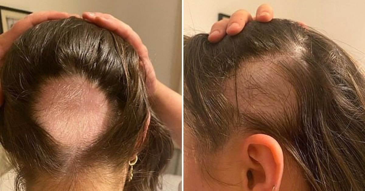 hair5 1.jpg?resize=1200,630 - Young Girl Shares How She Lost Huge Chunks Of Hair And Struggled To Find A Treatment