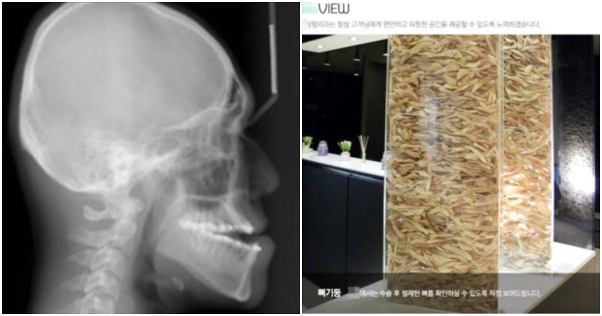 """page 154.jpg?resize=1200,630 - """"저게 다 턱뼈입니다.."""" 해외까지 보도되면서 전 세계에 조롱 당하게 된 한국 성형외과 '턱뼈탑' 사건"""