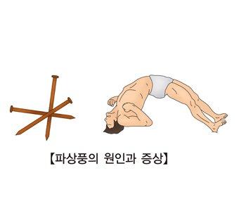 파상풍 | 질환백과 | 의료정보 | 건강정보 | 서울아산병원