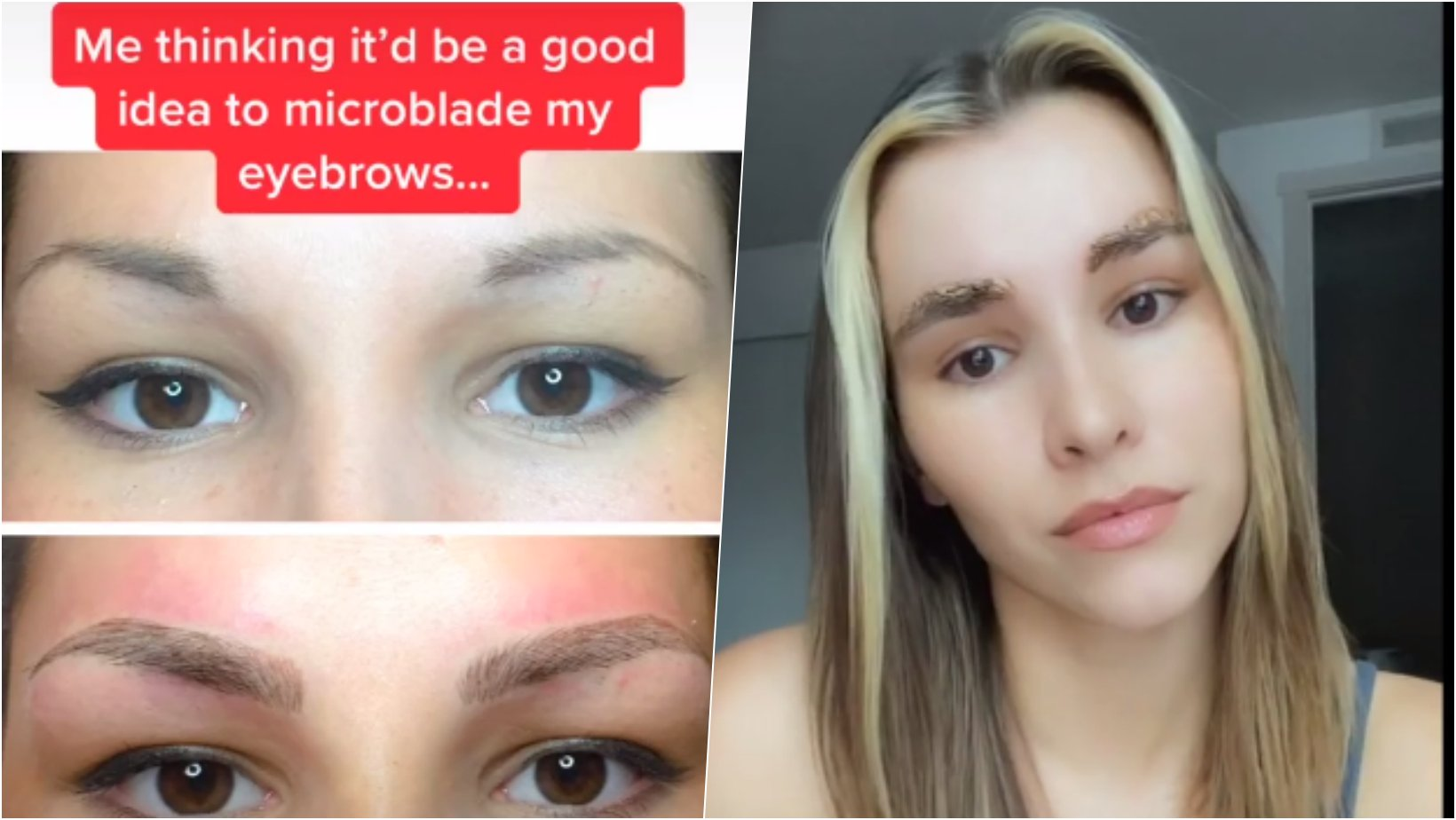 6 facebook cover 18.png?resize=1200,630 - Woman Discourages People To Microblade Their Brows After Horrific Results Four Years Later