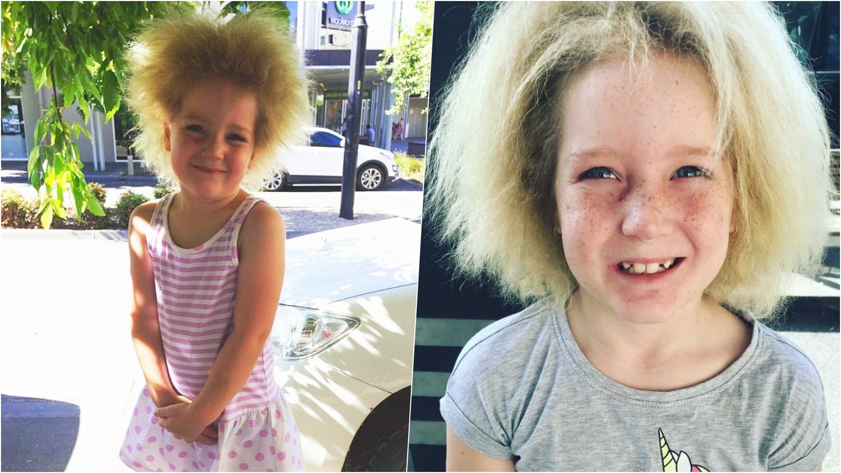 6 facebook cover 21.png?resize=1200,630 - Girl With Rare Hair Syndrome Finally Embraces Fuzzy Hair And Resist Bullies
