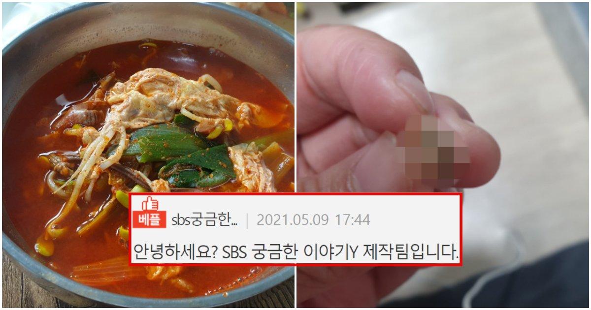 """collage 108.png?resize=412,232 - """"인천 중국집에서 음식 시켜먹었는데 사람 이빨이 나왔습니다… 그런데 중국집 사장님이 말하는 게 더 어이가 없네요"""" (+사진)"""