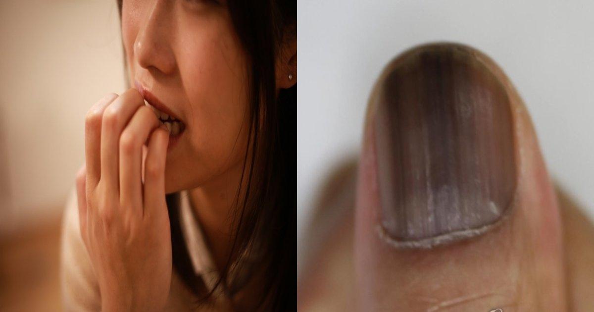 finger.png?resize=412,232 - 習慣的に爪を噛んで親指を「切断」することになった20代女性の衝撃的な話