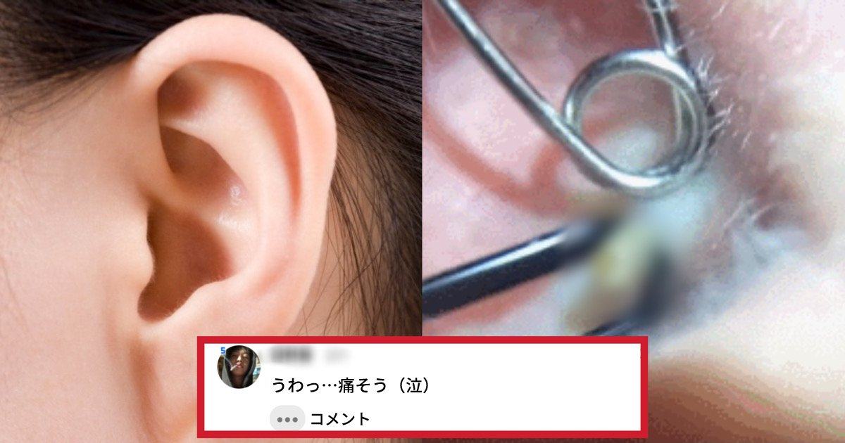 new project.png?resize=1200,630 - 「めっちゃ痛そうだけどすごくスッキリする...!」耳の中のニキビはどうやって除去する?(映像あり)