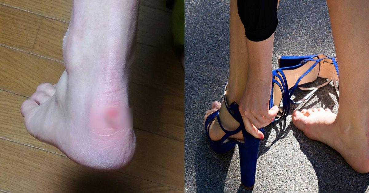 """pain.png?resize=412,232 - (写真注意) """"踵""""に生じた靴擦れのせいで足を「切断」するところでした"""