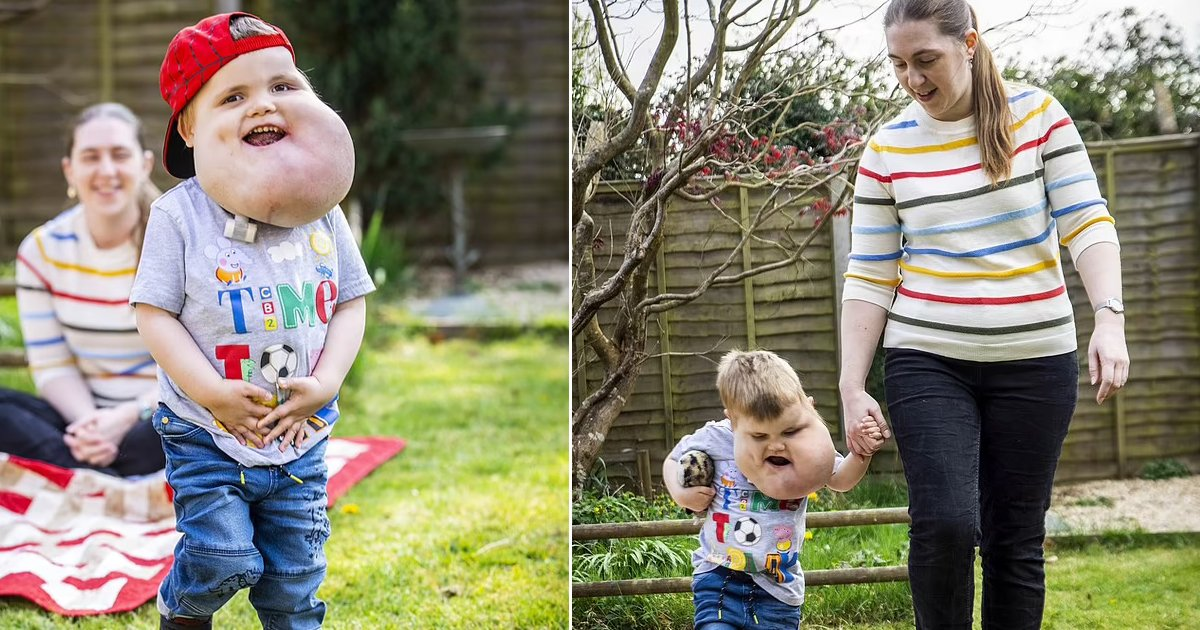 t8 14.jpg?resize=1200,630 - Brave 4-Year-Old Boy Walks For The First Time Despite Giant Facial Cysts Defying His Odds To Take Steps