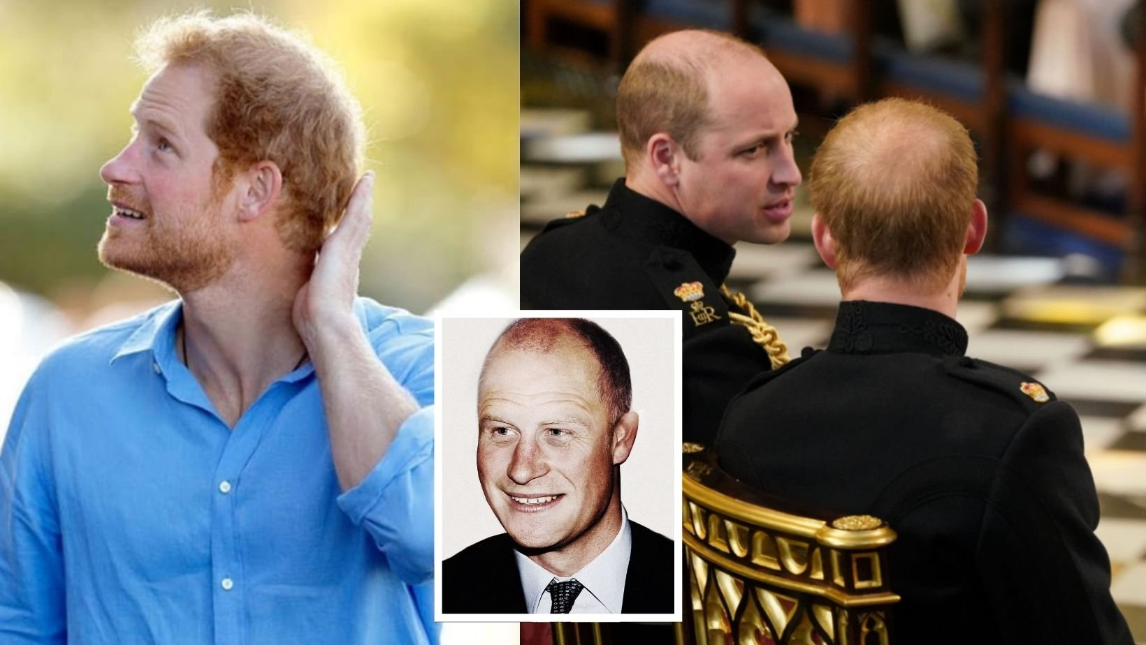 cover 12.jpg?resize=412,275 - Prince Harry's Hair Loss Is Getting Worse Since He Moved To The US, Cosmetic Doctor Claims He Will Be Completely Bald At 50