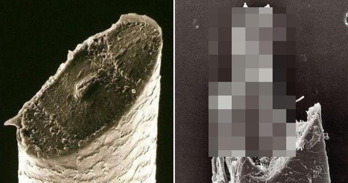 "2 16.jpg?resize=1200,630 - ""날면도기 vs 전기면도기?""... 수염을 '현미경'으로 보면 벌어지는 일"