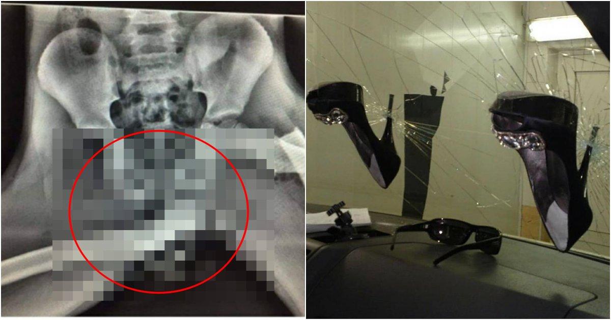 collage 470.png?resize=1200,630 - 차에서 하지 말라는 들키면 안되는 행위 했다가 허벅지 뼈가 '소중이'에 가버린 여성 (+사진)
