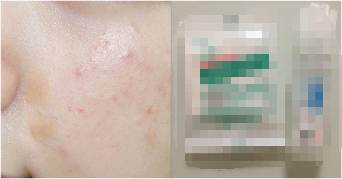 "collage 484.png?resize=1200,630 - 마스크로 인한, 피부 트러블을 예방하기 위해 ""XX""로 10분 정도 올려놓고 헹구라는 이유"