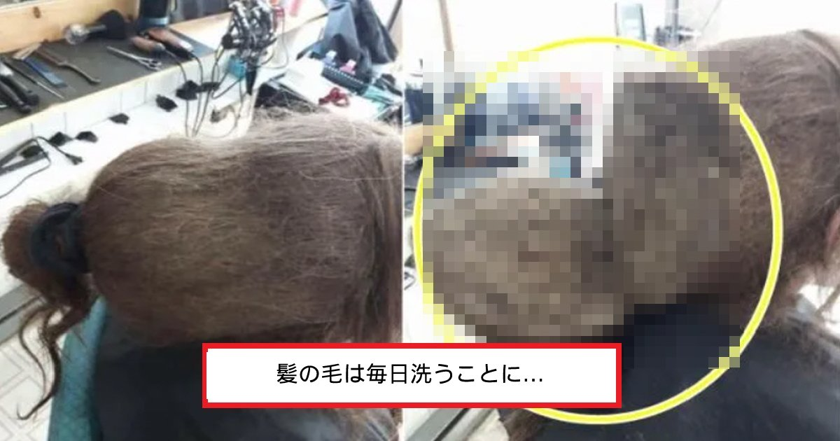 hair.png?resize=1200,630 - 「なぜ人の髪の毛にカビが...?」3年間髪の毛を洗わなかった女性が最終的に散髪した姿とは⁉