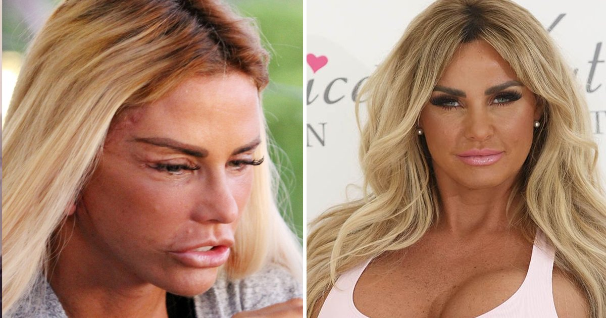 """q5.jpg?resize=1200,630 - """"You Must Think Of Your Kids Sometimes""""- Katie Price's Ex SLAMS Her Plastic Surgery Journey"""