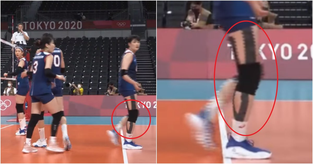 collage 2.png?resize=412,232 - 2달전에 '무릎을 여는 큰수술'을 한 김희진선수, 국대로 데려 올 수 밖에 없던 이유