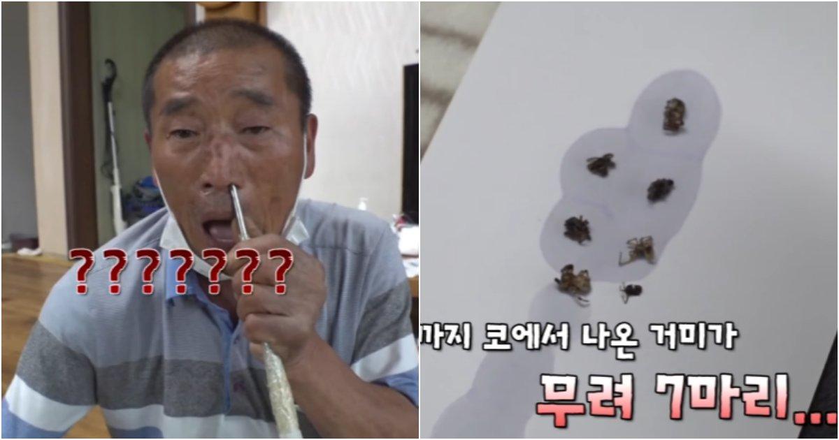 collage 753.png?resize=1200,630 - 조회수 500만 찍어버렸던 머리에 거미가 들어갔다는 할아버지 사연
