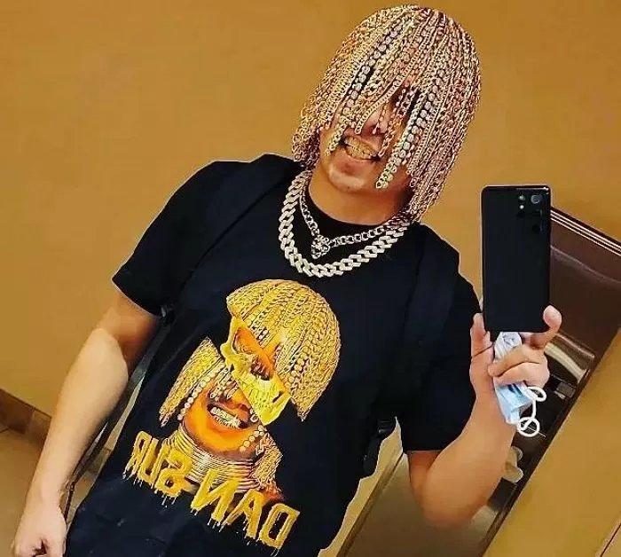 황금빛 머릿결 갖고 싶어 머리카락 다 뽑고 두개골에 '금 사슬' 이식한 래퍼 (영상) - 인사이트