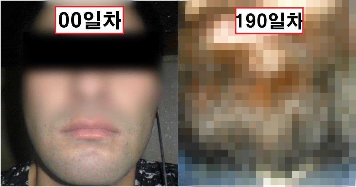 collage 319.png?resize=412,232 - 190일 동안 수염을 안 깎고, 기록을 남긴 한 남성에게 벌어지는 일(+사진)