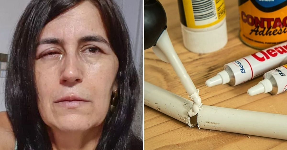 glue4.jpg?resize=1200,630 - Man Accidentally Glues His Girlfriend's Eyes Completely Shut After Mixing Up Her Eye-Drops With Powerful Superglue