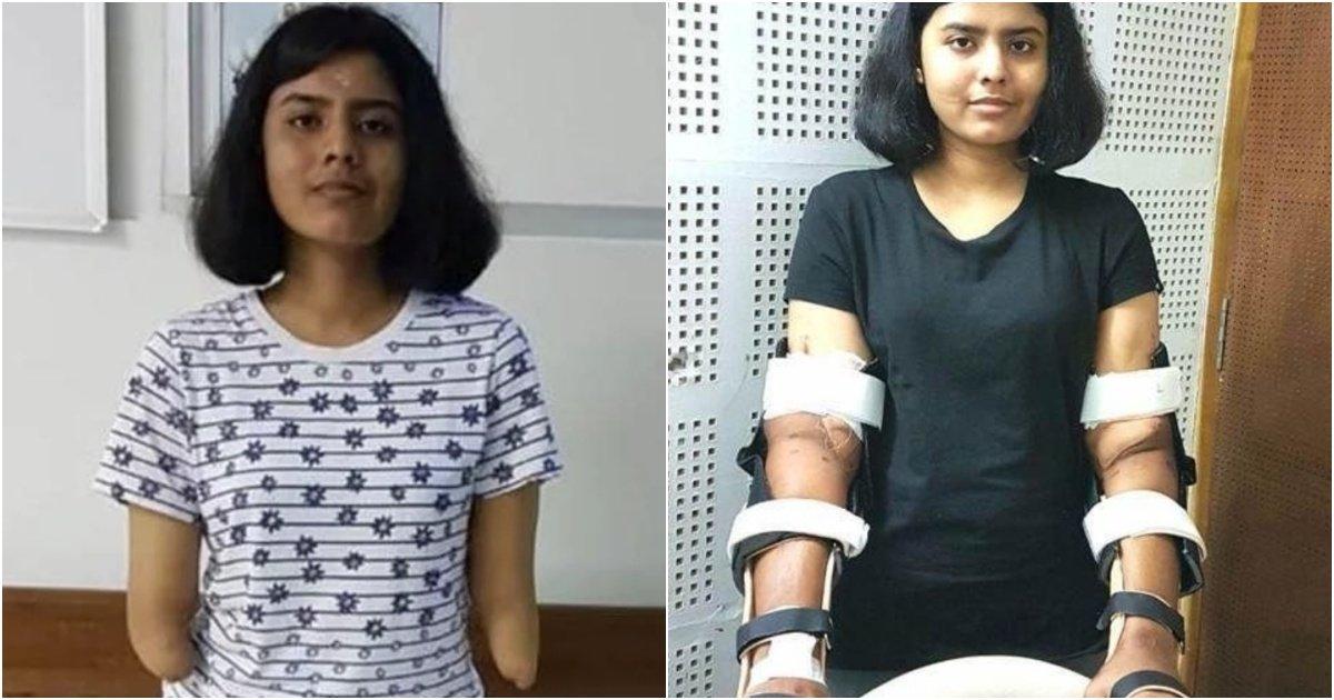 collage 51.jpg?resize=1200,630 - 기증 받을 팔이 없어 건장한 남성의 팔을 이식 받은 소녀의 최근 모습