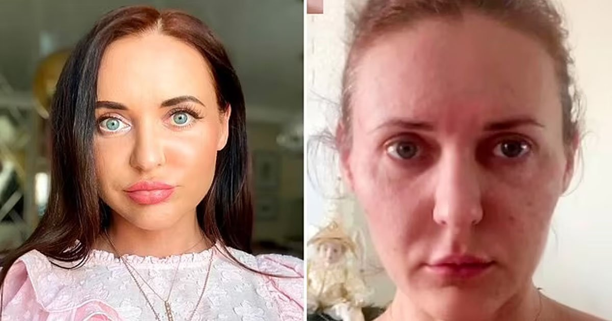 """t3 4.jpg?resize=412,232 - """"I Lost My Face Forever""""- Woman's Skin 'Shrinks Like A MUMMY' After Beauty Treatment Ages Her 10 Years Overnight"""