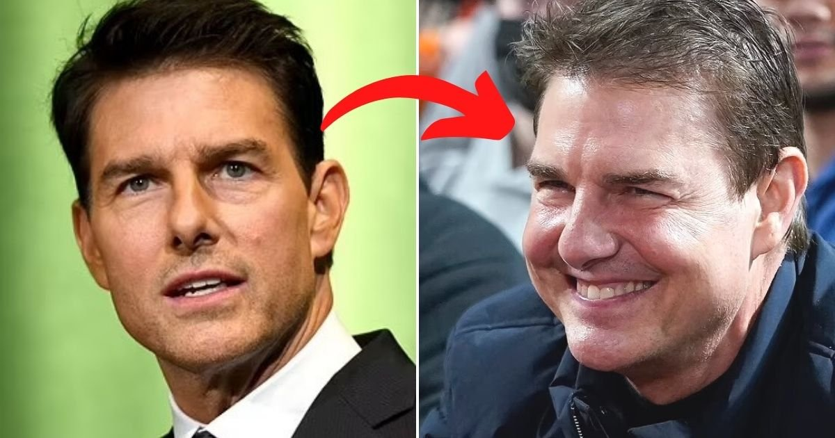 untitled design 46.jpg?resize=1200,630 - Doctors Discuss Tom Cruise's New Looks And Reveal That The New Appearance Could Be A Result Of Cosmetic Procedures