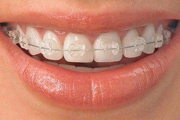 I0006035 10 - 芸能人の歯は天然ではない?差し歯、入れ歯、インプラントをした芸能人まとめ!