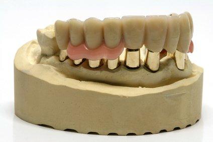 I0006035 12 - 芸能人の歯は天然ではない?差し歯、入れ歯、インプラントをした芸能人まとめ!