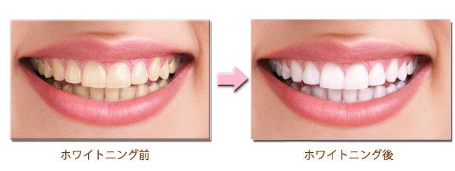 I0006035 14 - 芸能人の歯は天然ではない?差し歯、入れ歯、インプラントをした芸能人まとめ!