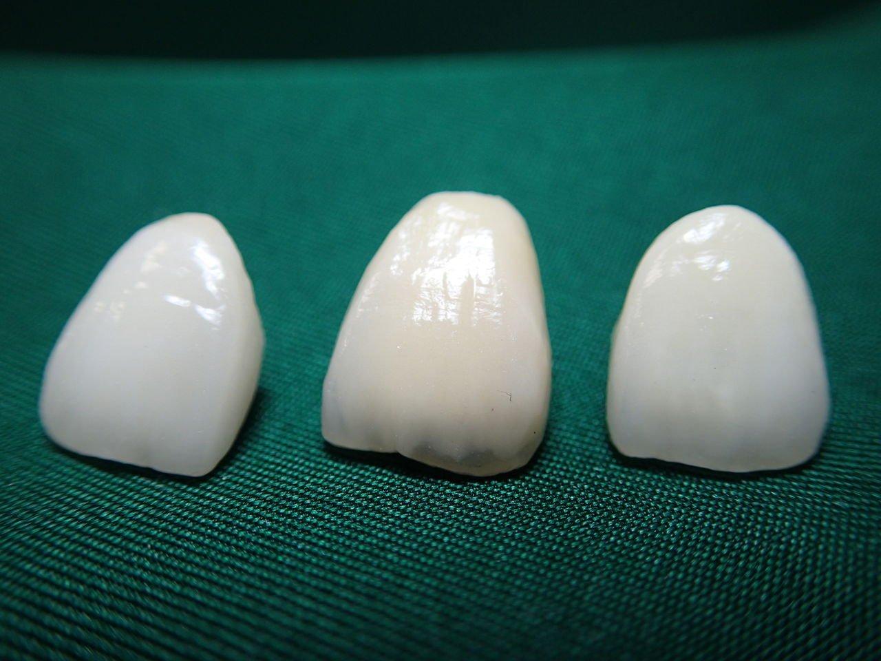 I0006035 15 - 芸能人の歯は天然ではない?差し歯、入れ歯、インプラントをした芸能人まとめ!