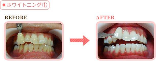 I0006035 19 - 芸能人の歯は天然ではない?差し歯、入れ歯、インプラントをした芸能人まとめ!