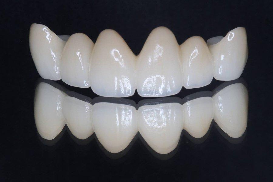 芸能人の歯 セラミック