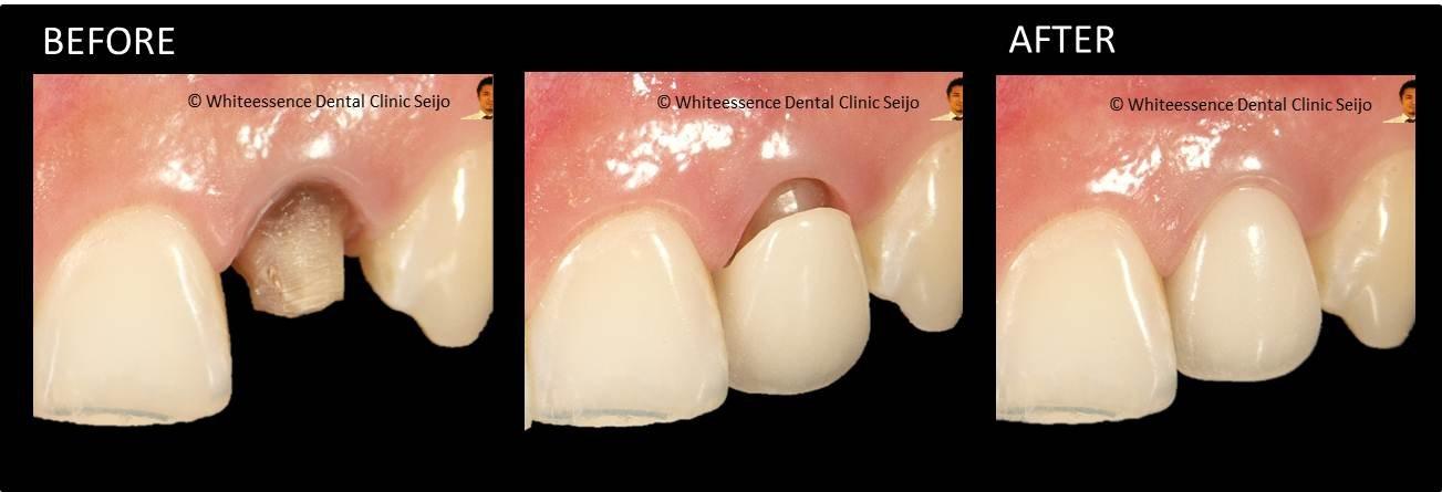 I0006035 20 - 芸能人の歯は天然ではない?差し歯、入れ歯、インプラントをした芸能人まとめ!