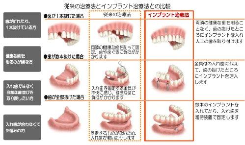 I0006035 22 - 芸能人の歯は天然ではない?差し歯、入れ歯、インプラントをした芸能人まとめ!