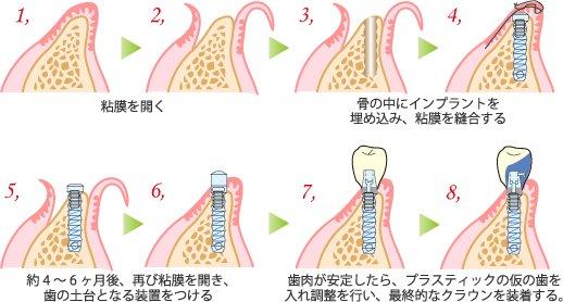 芸能人の歯 インプラント